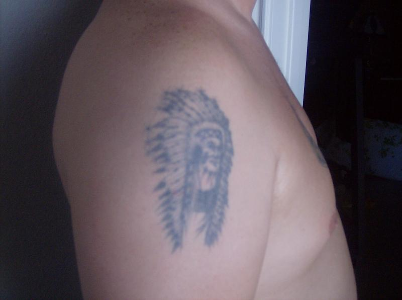 Right Arm Before