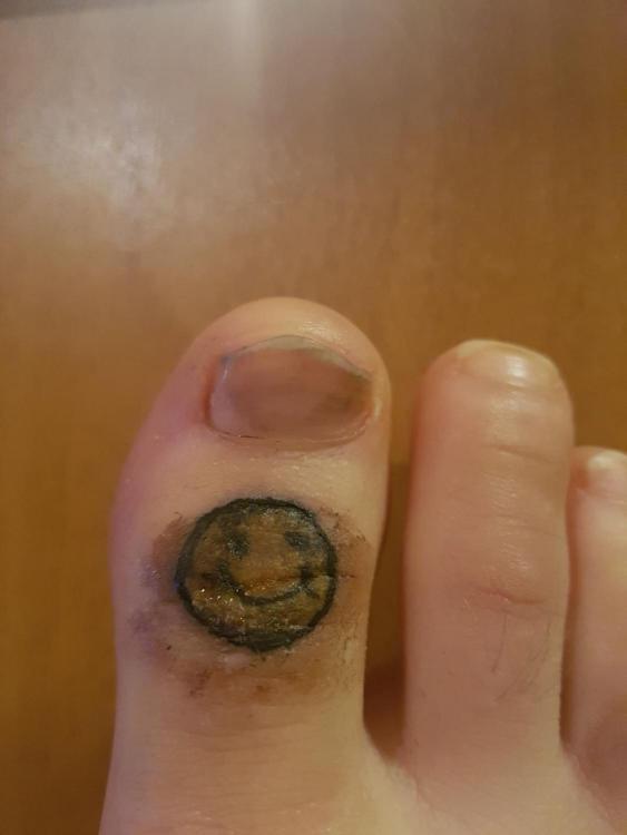my toe.jpeg